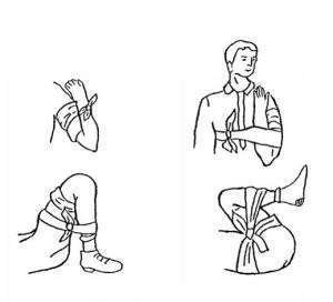 Остановка кровотечения сгибанием конечности в суставах