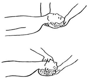 Раскрытие гортани
